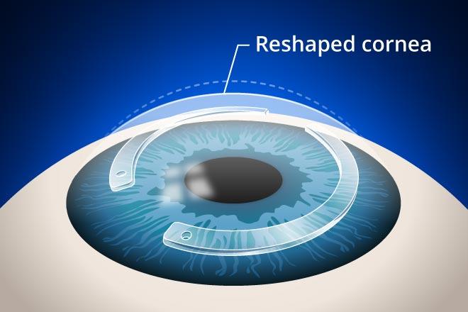 Keratoconus Treatment And Diagnosis Twenty Twenty Eye Care