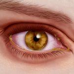 Common Eye Viruses