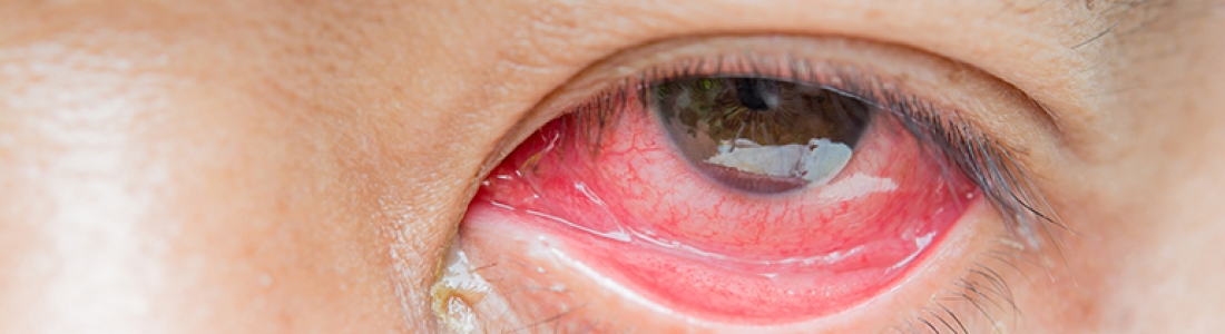 4 Things You Should Know About Expired Contact Lens